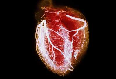 CBD Cannabidiol Heart Disease